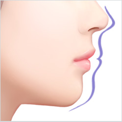 What is 3D smile line rhinoplasty?